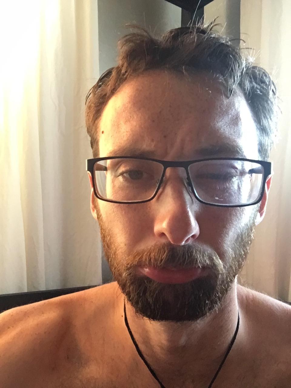 Day one - my eye fiasco